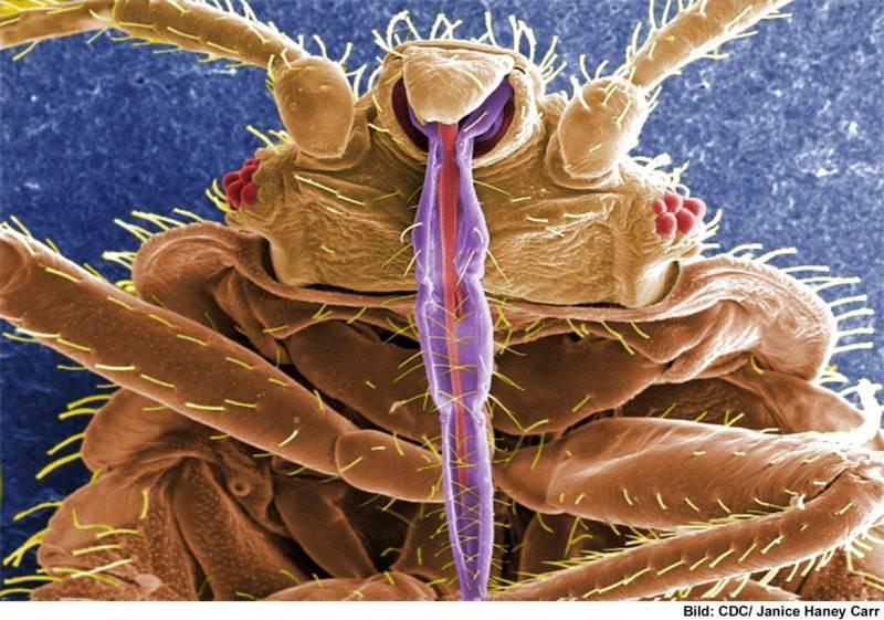 Bettwanzen | Eine Bettwanze unter dem Elektronenmikroskop