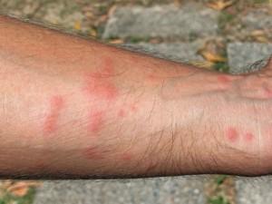 Bild rötlicher Stiche auf einem Arm